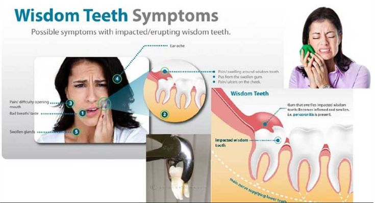 Pros and Cons of Wisdom Teeth Extraction Pros and Cons of Wisdom Teeth Extraction new foto