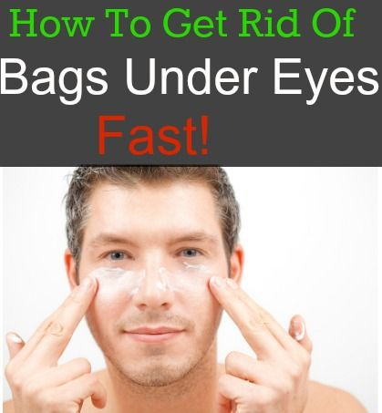 How to get rid of bags under eyes fast love this stuff for How to get rid of things