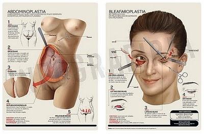 Radiografía de una Cirugía Cosmética  Procedimientos:  Blefaroplastia y Abdominoplastia