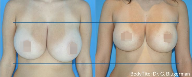 Best Exercises for a Natural Breast Lift