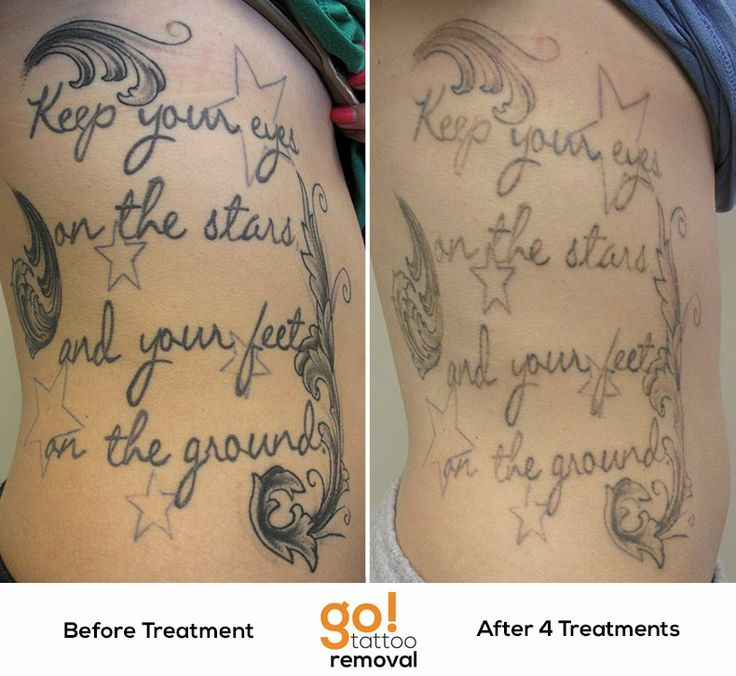 Pin by GO! Tattoo Removal on Tattoo Removal In Progress | Pinterest