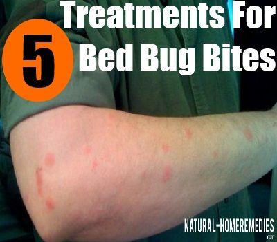 How To Get Rid Of Bed Bugs | How To Kill Bed Bugs