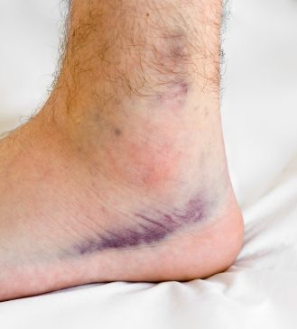 how to tell if your ankle is sprained or broken