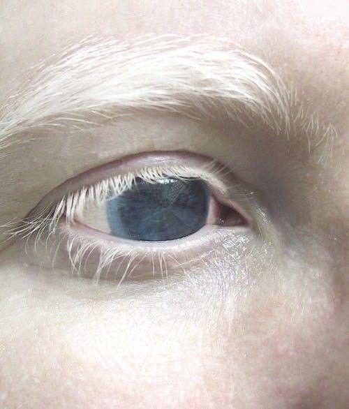 albino eye | Albinism | Pinterest