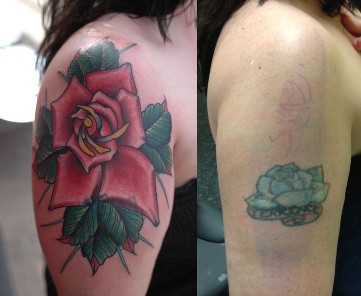 Monster rose cover up northeast tattoo laser removal and for Twin city tattoo