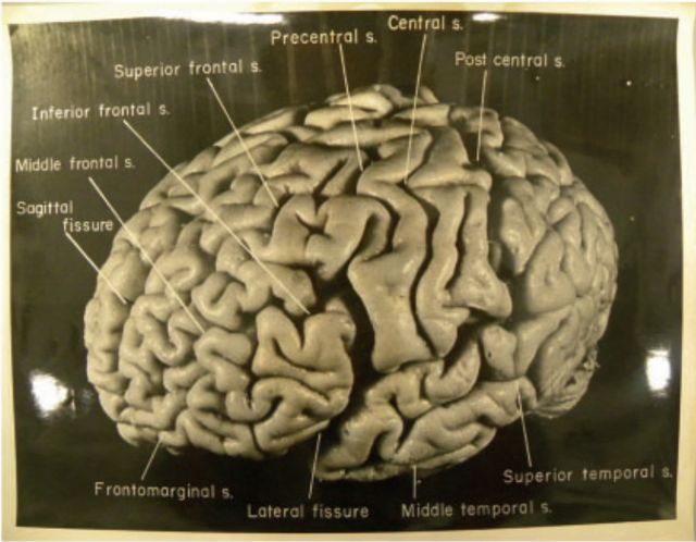 a discussion on the power of the human brain The human brain evolved, too the brain is a survival organ it is designed to  solve problems related to surviving in an unstable outdoor environment and to do .