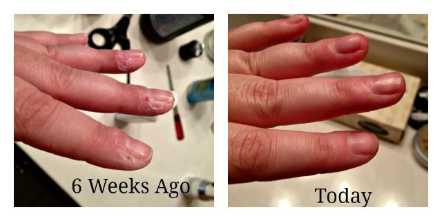 Is Skin Picking A Form of Obsessive-Compulsive Disorder?