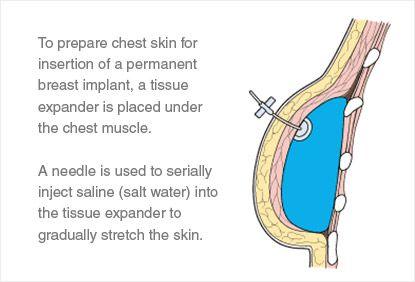 Breast cancer implantable radiation