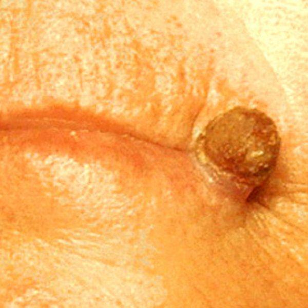 cancerous skin tags cancerous skin tags   Healt ...