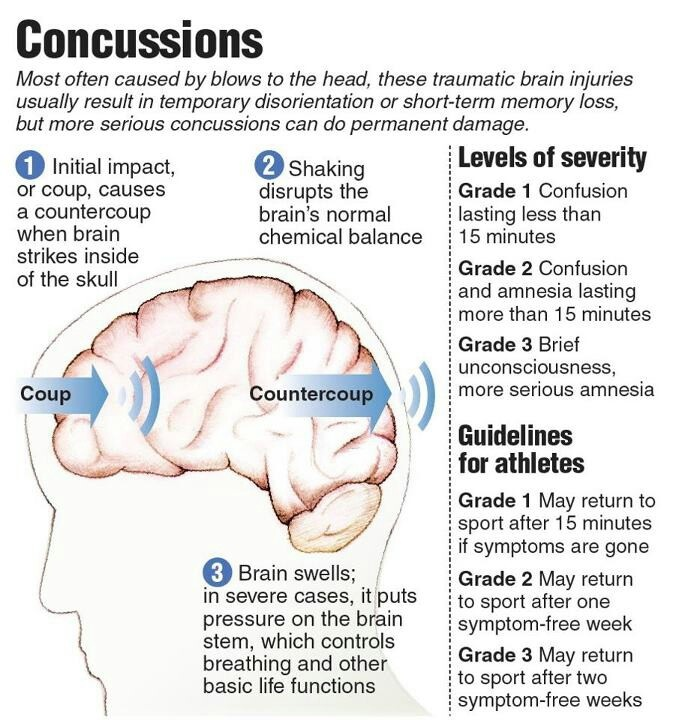 informative speech on concussions Thank you very much for your thoughtful and informative comment #11 chris january 27, 2011  but we don't take 500 blows to the head a year and 2 concussions.