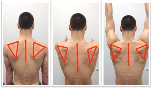 Scapular winging | physical therapy | Pinterest