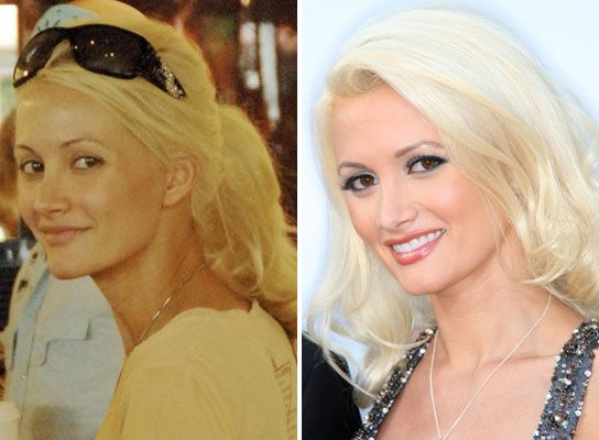 Com topic 505 amazing celebrities before and after plastic surgery