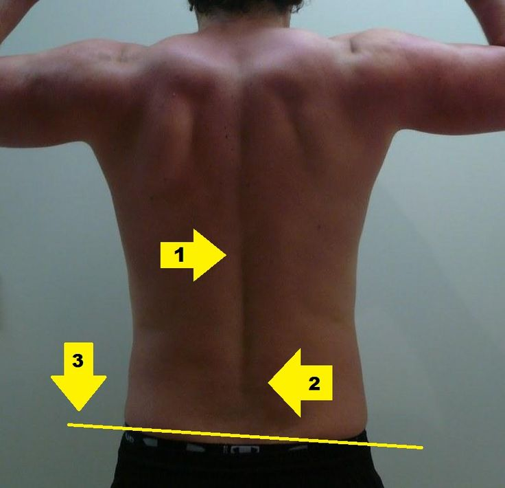 Middle Back Pain Exercises Lower Back Pain Exercises - 2 week hiatus ...