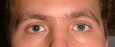 Aniscoria is having pupils of two different sizes.  It can be genetic, a sign of a disease, or from an injury.  David Bowie's permanently dilated pupil was caused by a punch to the eye.  Judd Hirsch is another celebrity with this trait.