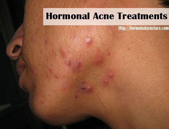 acne adult hormonal treatment