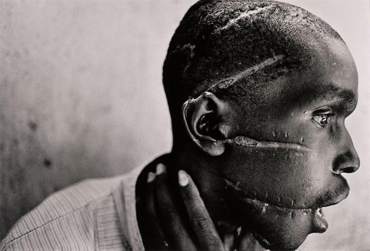 hutu mutilado por las milicias hutus, sospechoso de simpatizar con los ...