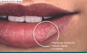 cold sore causes and cures sign in