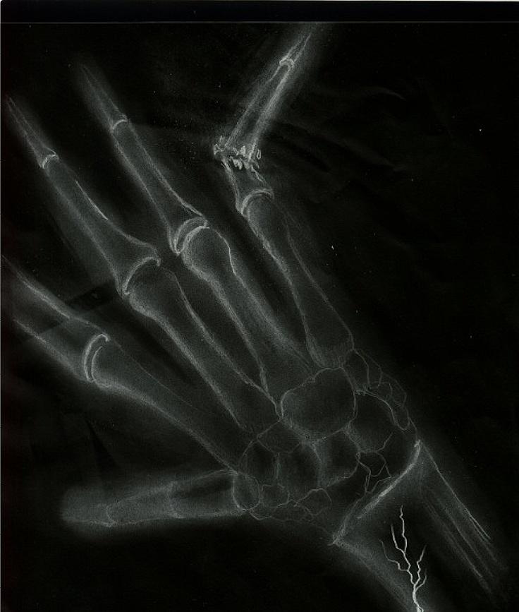 xray broken finger broken fingers debt collection