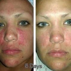Nerium AD Before and After