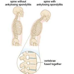 How Physical Therapy Helps Ankylosing Spondylitis picture