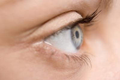 How to Tighten Skin on Upper Eyelids Naturally