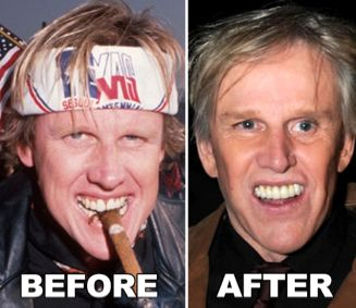 Celebrity Gary Busey Plastic Surgery Before After - http   www    Gary Busey Motorcycle Accident Before And After