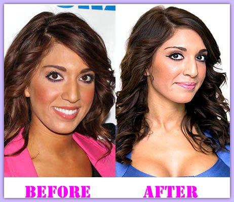 Exclusive Reviews of Farrah Abraham Plastic Surgery