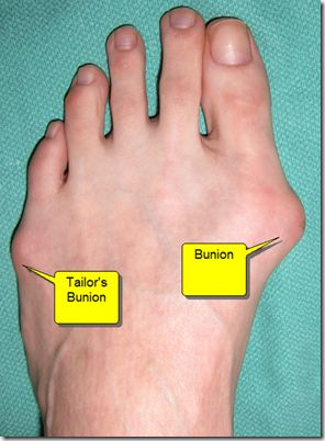 Before bunion surgery.
