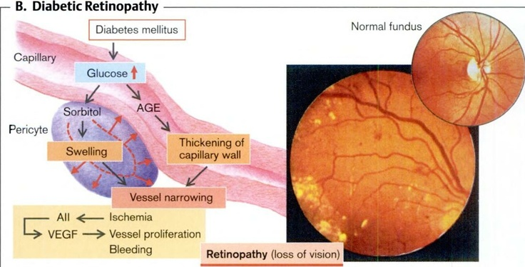 cerebrovascular disease 2013