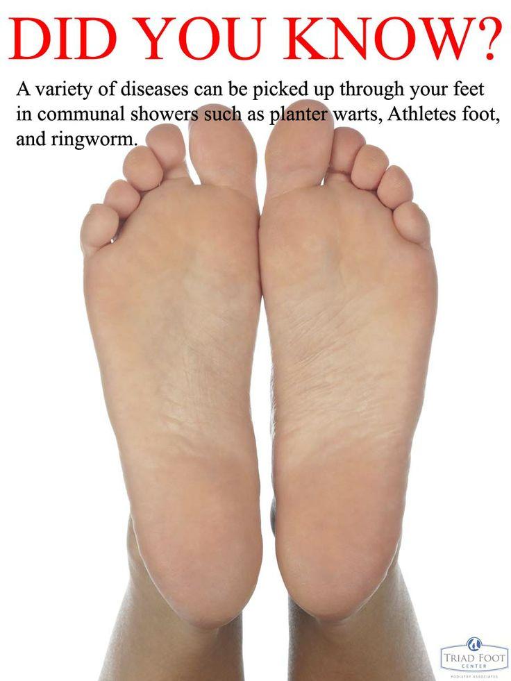 16 Ways To Treat Foot Pain pics