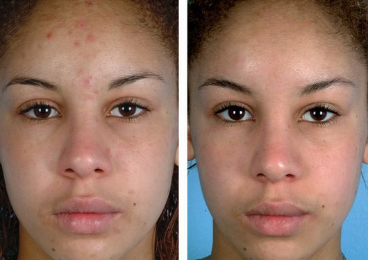 Forum on this topic: How To Use Lemon Juice For Acne , how-to-use-lemon-juice-for-acne/