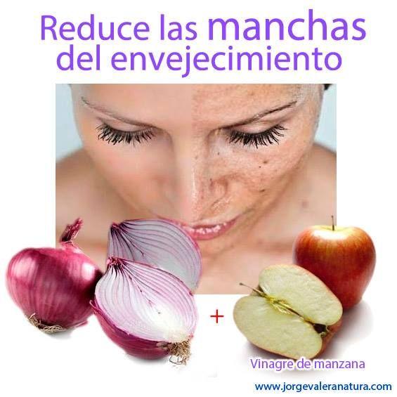 para las manchas | remedios caseros para la piel | Pinterest