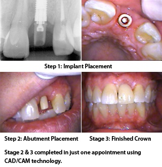 tooth implant prices in south africa