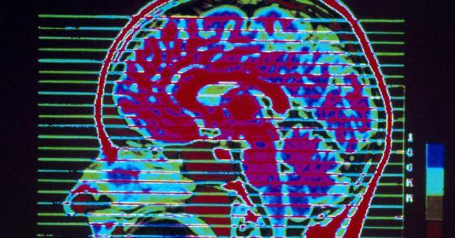 Mirror neurons inspiration pinterest for Mirror neurons