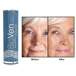 bioven anti wrinkle venom cream