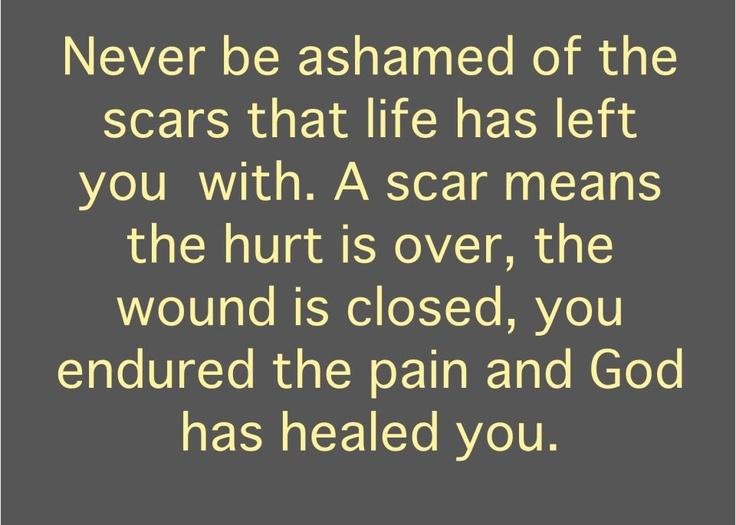 Never be ashamed...