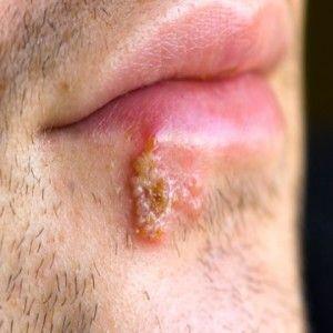 herpes simplex 2 symptoms quiz