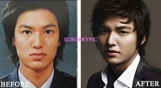 Lee min ho plastic surgery celebrity before after pinterest