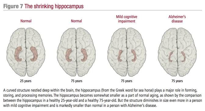 How quickly can your brain atrophy?   b-reddy.org