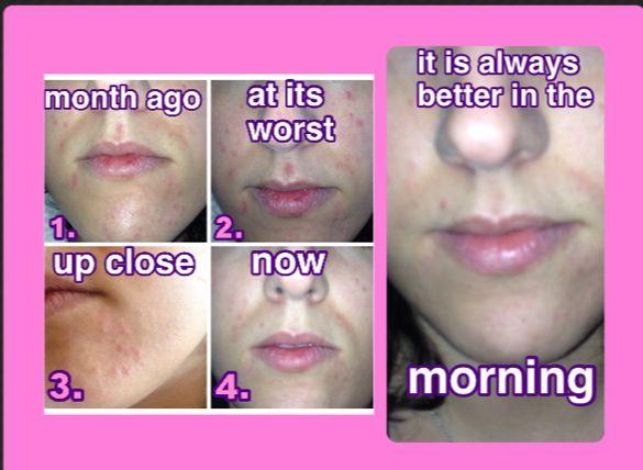 Does vinegar get rid of acne