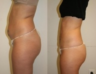The Ultimate Body Wrap can do wonders for your troublesome areas!  Apply anywhere for at least 45 minutes and let it do the work! Visit: www.facebook.com/pages/Lose-Inches-with-Tara/117781501682899