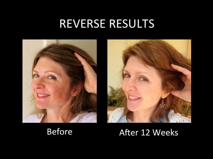 ... better skin today! http://brandimcclure.myrandf.com #Reverse #Results