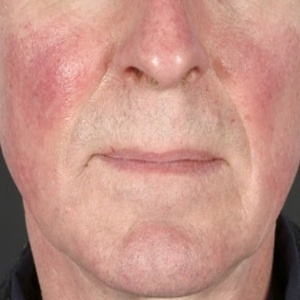 Acne Rosacea – Symptoms, Diagnosis, Causes and Treatment