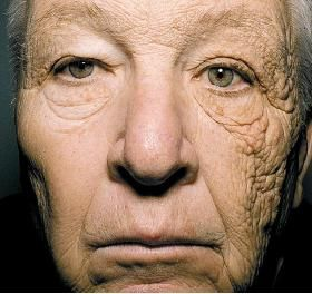 notice the increased damage on the left of his face where sun hit him while driving for years.  It's the truth - too much sun is dangerous - please wear your sunscreen......