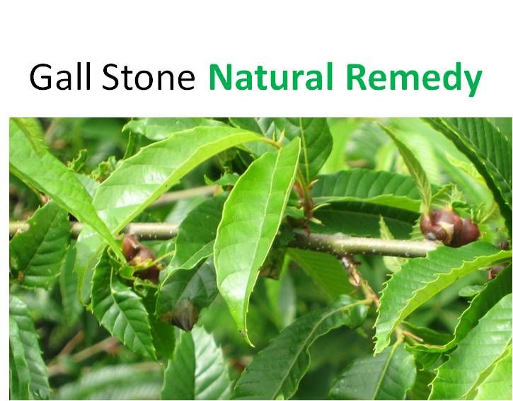 stones in gall bladder symptoms gallstones