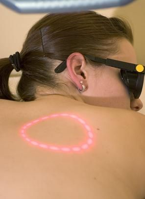 Laser Hair Removal Burn Scars