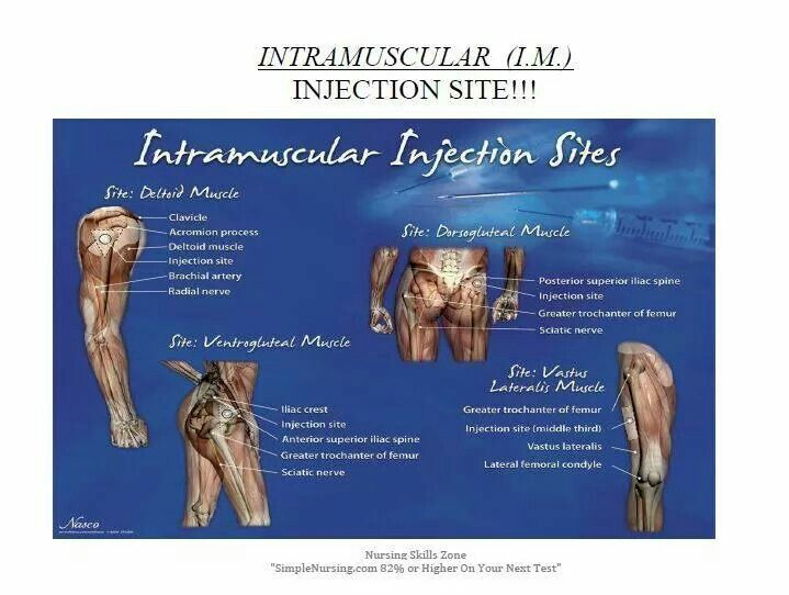how to give im injection in deltoid muscle
