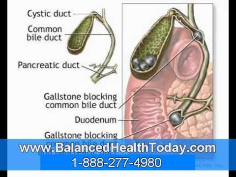 symptoms of a gallbladder attack left untreated