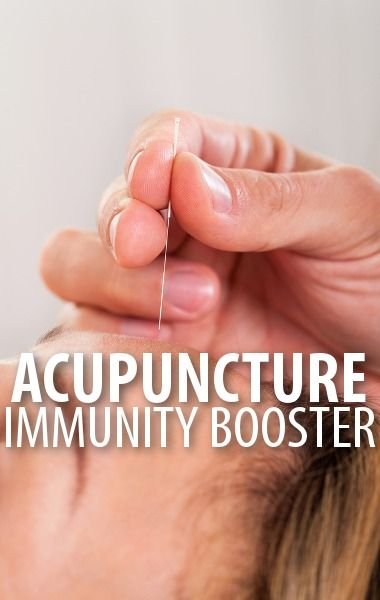 acupuncture for allergies