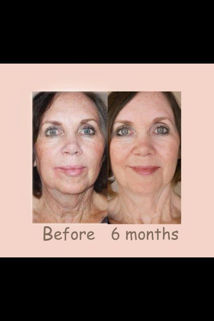 Nerium? Fine lines, wrinkles, discoloration, large pores? No problem ...